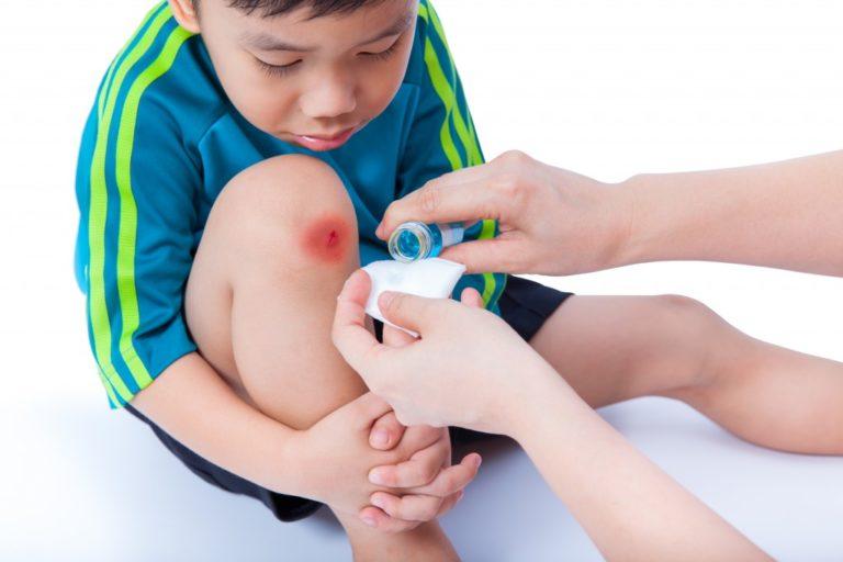 injured knee of child